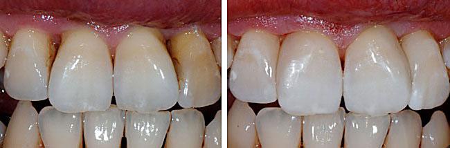 Zwischen den schneidezähnen grosse zahnlücke Zahnlücke. Was